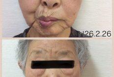 顔面部の麻痺が改善されました